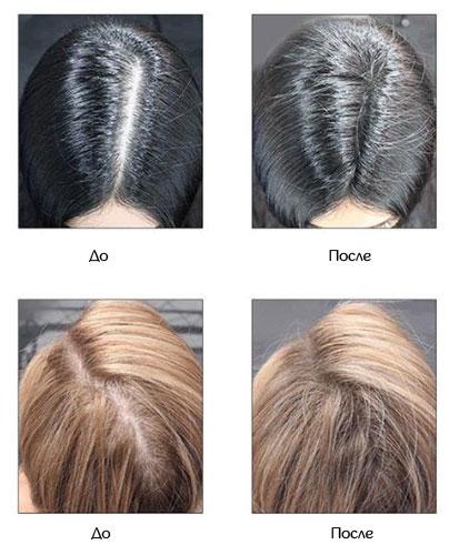 результаты применения аэрозольного загустителя волос